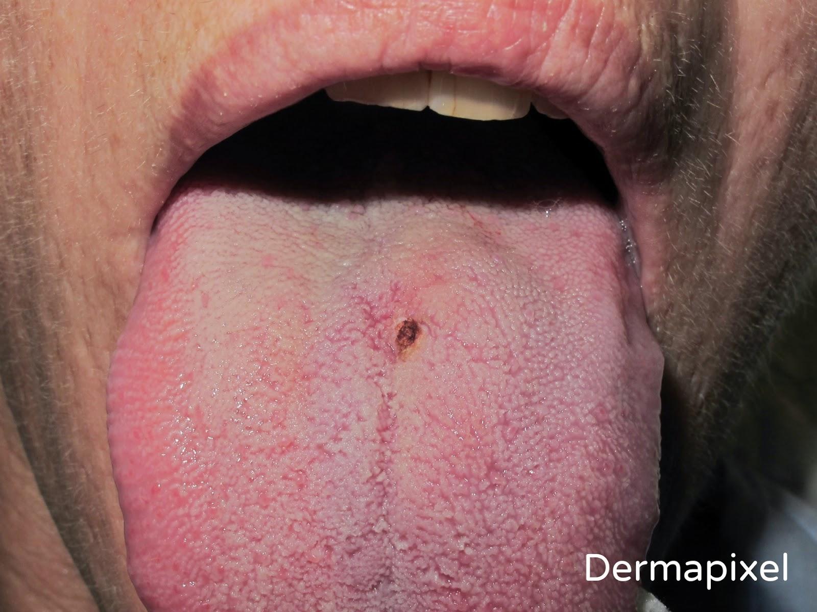 papiloma en la boca lengua papiloma krema lilly