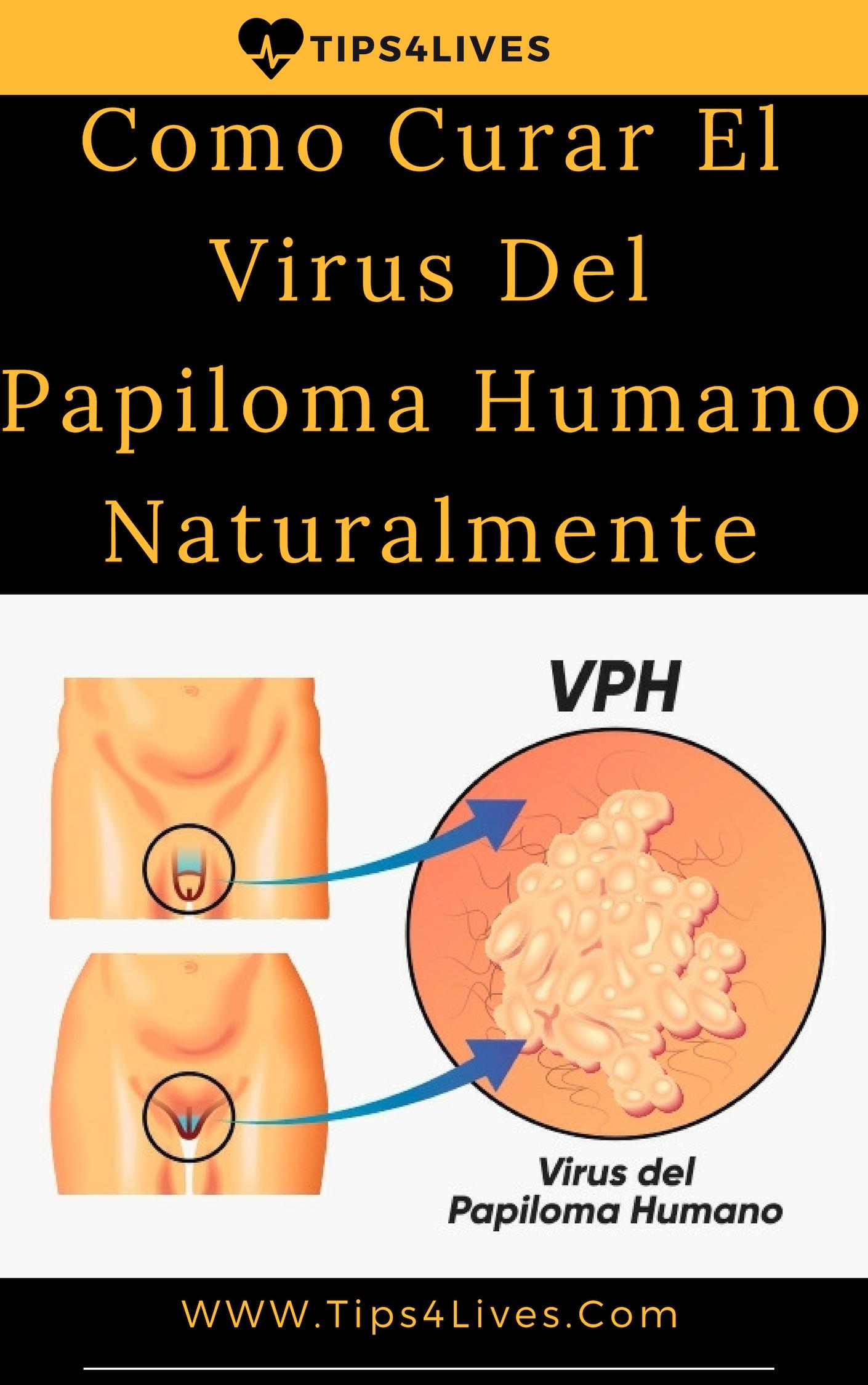 papiloma humano primeros sintomas