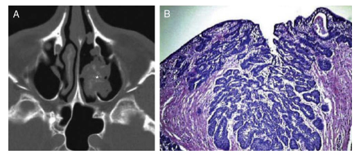 papiloma inverso nasal human papillomavirus (hpv) vaccination consent form