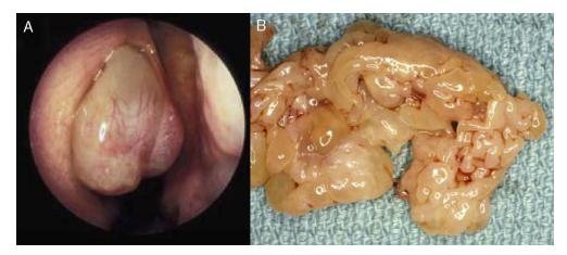 papiloma inverso nasal virus del papiloma humano en hombres se cura solo