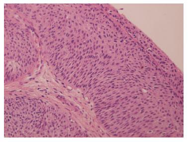 flatulenta in sarcina bacterii marite in urina