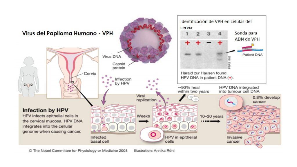 head and neck cancer due to hpv cancer de pancreas y diarrea