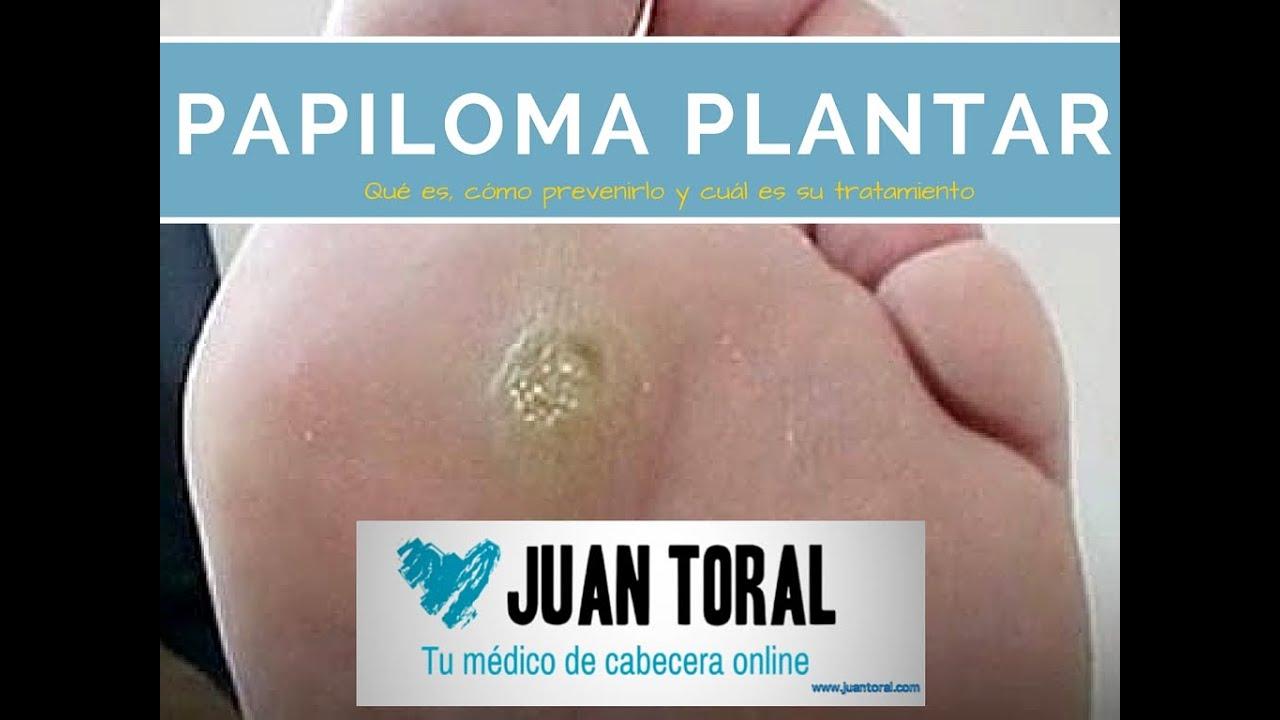 papilomatosis plantar tratamiento cancer bucal obraz