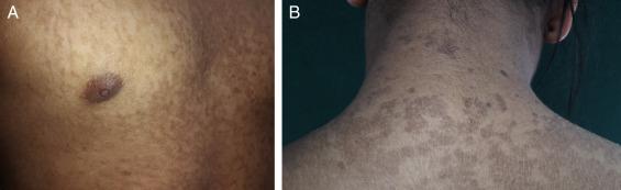 papilomatosis reticulada y confluente tratamiento papillomavirus et traitement naturel