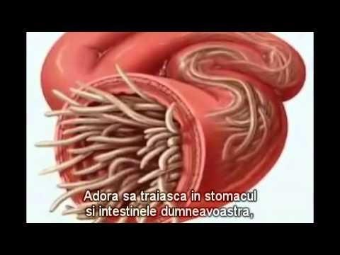 paraziti in corpul uman simptome papilloma interno occhio