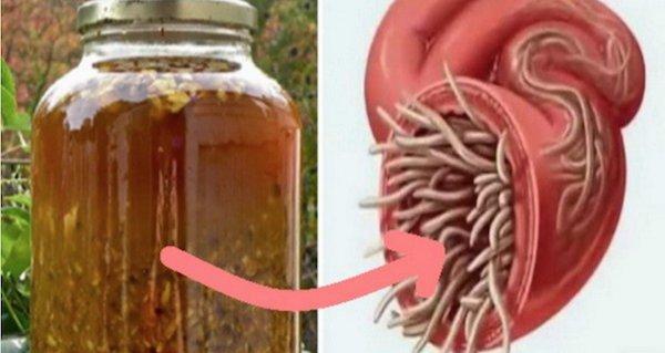 schistosomiasis anemia