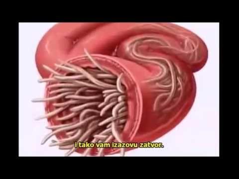 paraziti u ljudskom telu