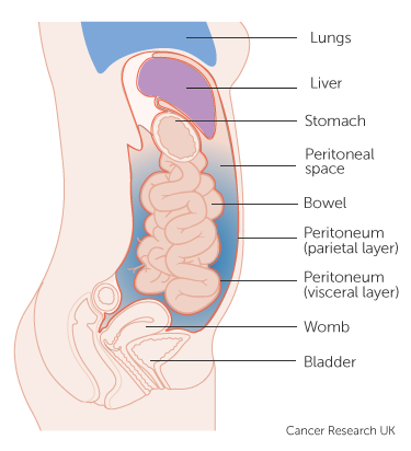 peritoneal cancer brca2 bacterii urina copil