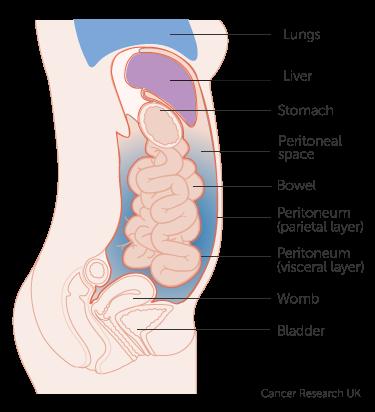 cervical cancer hpv etiology