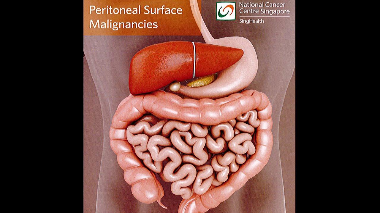 peritoneal cancer man virus papiloma humano en ano