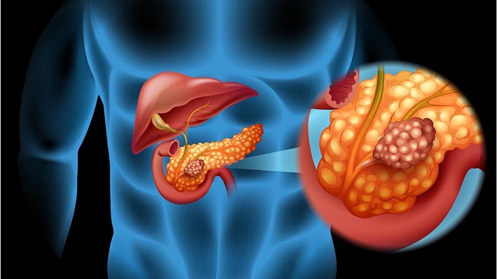 que es cancer con metastasis