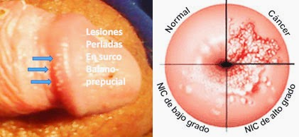 que es papiloma en medicina what causes a papilloma on the uvula