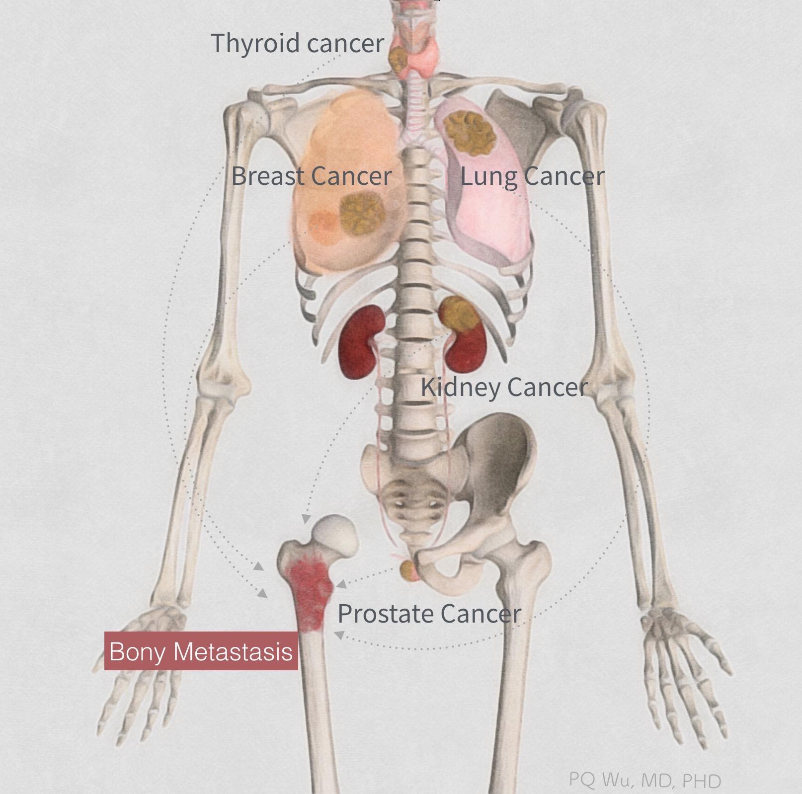 renal cancer bone metastasis