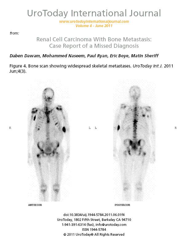 papillomavirus verge traitement cauze cancer col