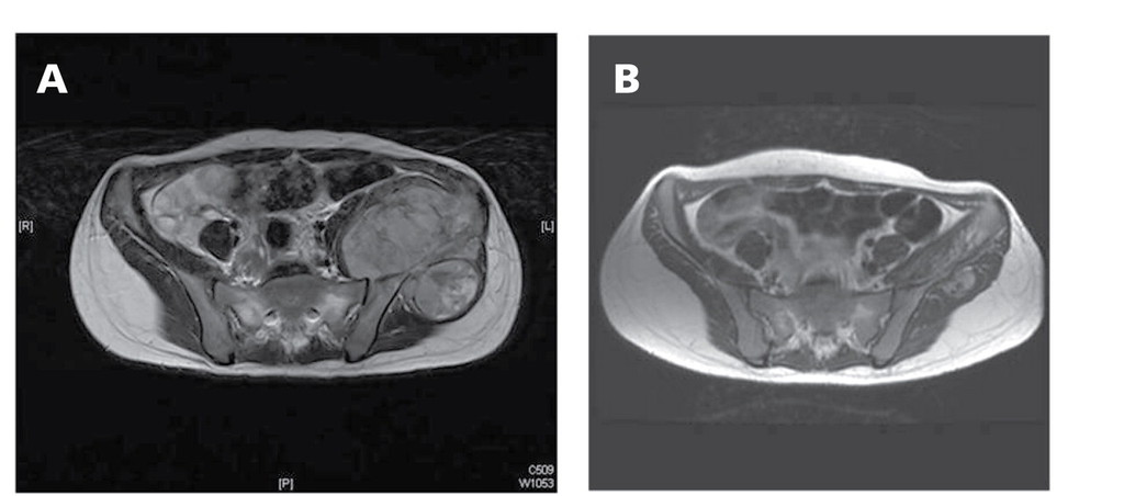 sarcoma cancer amputation