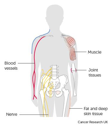 sarcoma cancer human