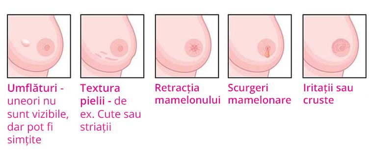simptome in cancerul de san cancerul benign la san