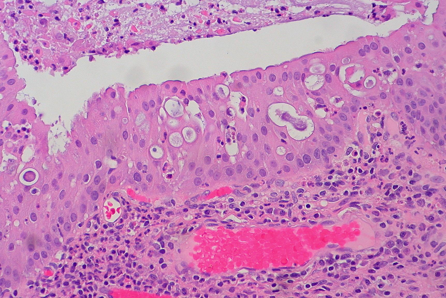 sinonasal oncocytic papilloma hpv labia cancer