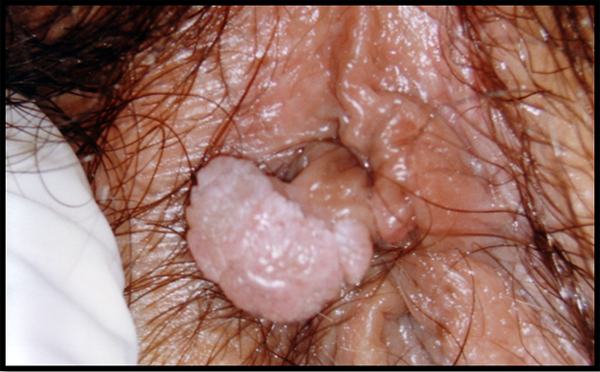 sintomi hpv femminile o reteta de ciuperci