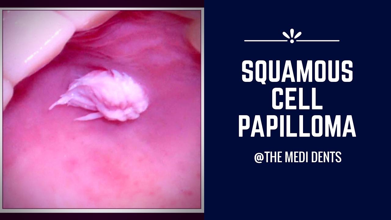 squamous cell papilloma la gi quel traitement pour le papillomavirus chez lhomme