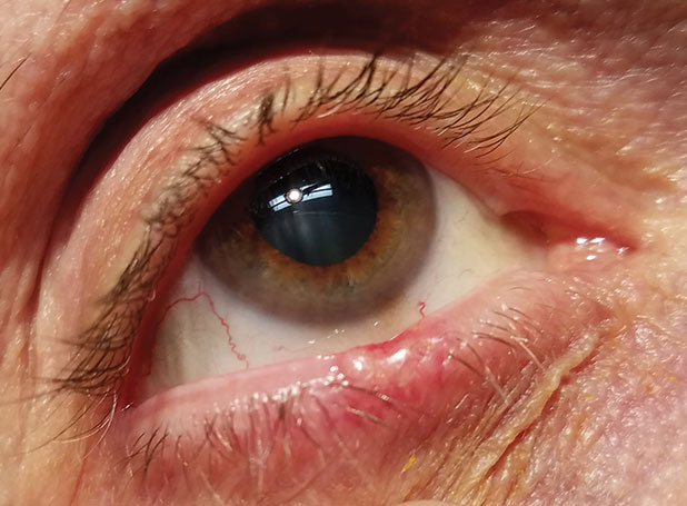 Diagnostic Atlas of Common Eyelid Diseases - malaimare.ro