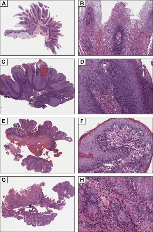 le papillomavirus et la grossesse