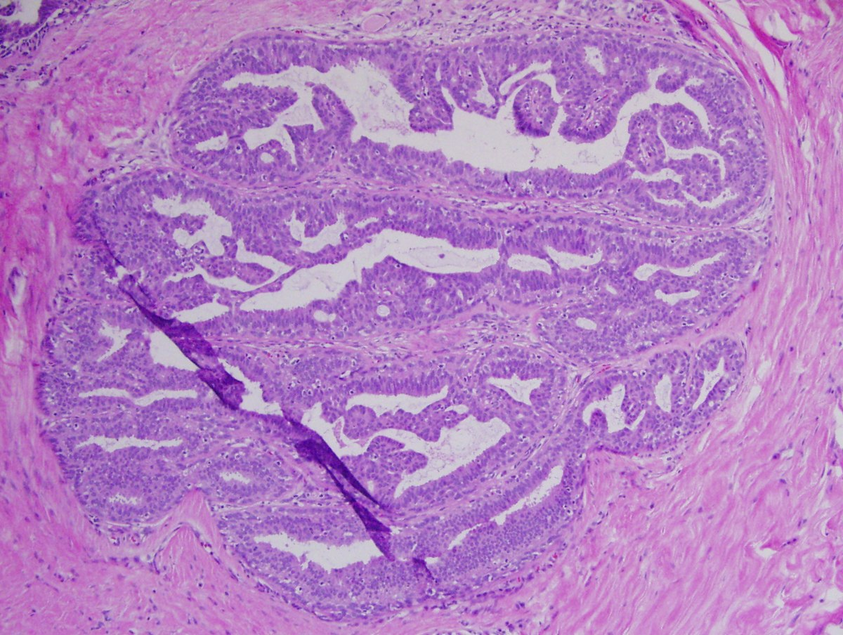 squamous papilloma with mild atypia