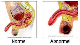 testicular cancer tumor size