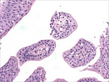 Urinary bladder papilloma means