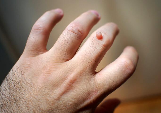 vaccino papilloma virus verruche