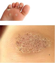 papilloma tumor nedir