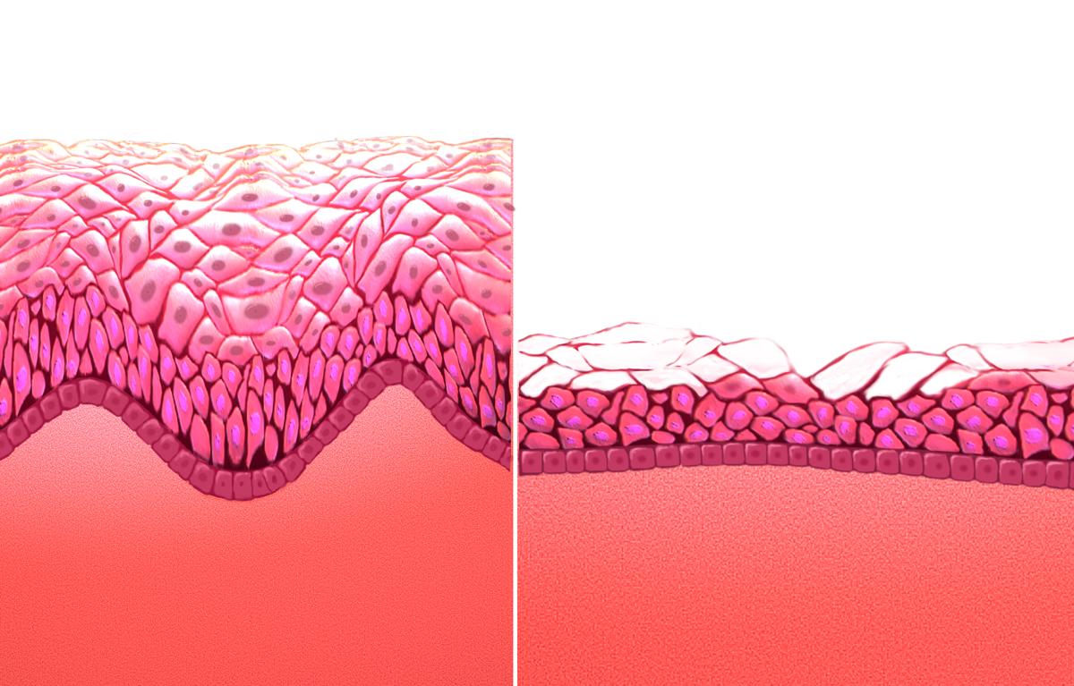 tratamiento para los oxiuros en los ninos tumore papilloma alla vescica