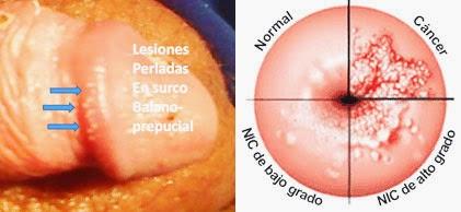 virus del papiloma bajo riesgo giardia scaun cu mucus