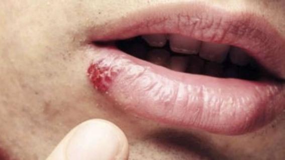 hpv warts under skin