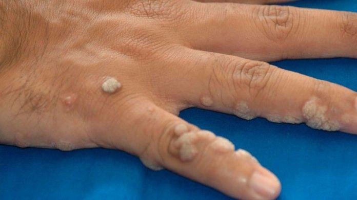 virus del papiloma humano y cancer de piel papiloma humano y verrugas