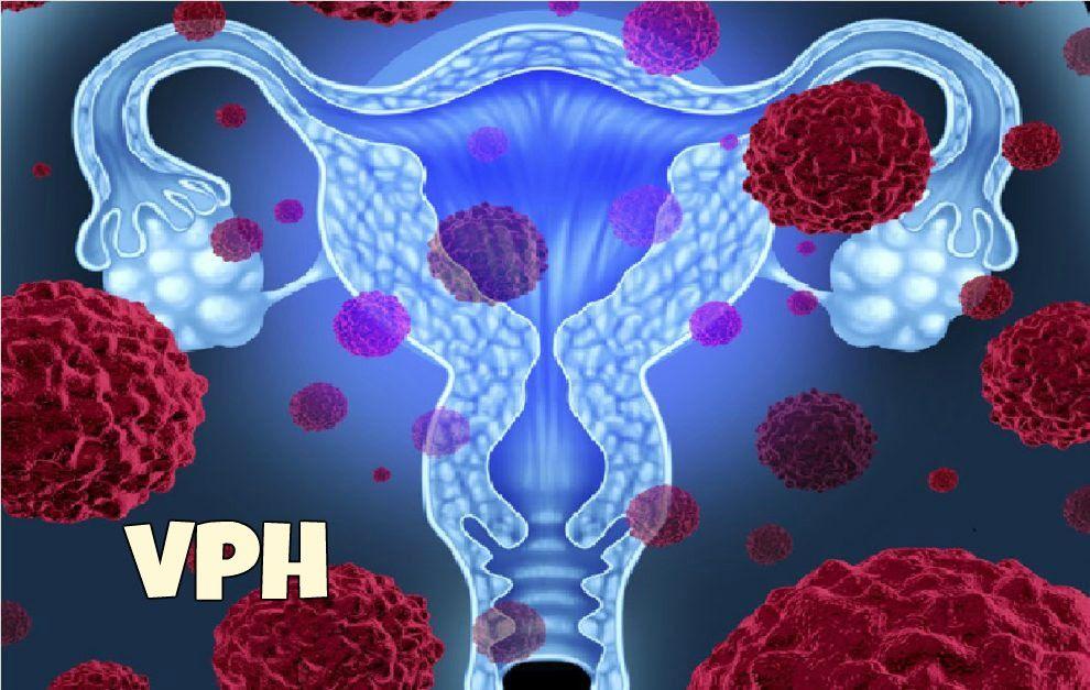 virus del papiloma k es cancer de piele vindecare