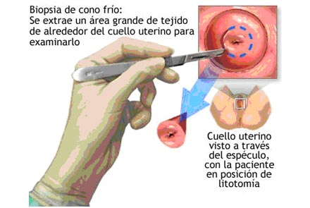 anemie posthemoragica acuta