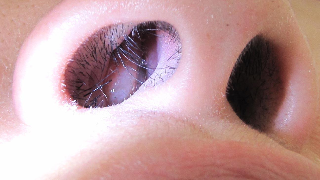hpv in the eye