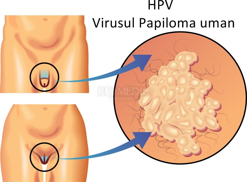 virusul papiloma uman-simptome