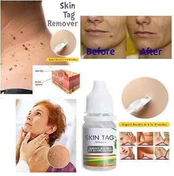 wart cream on skin tags cancerul renal
