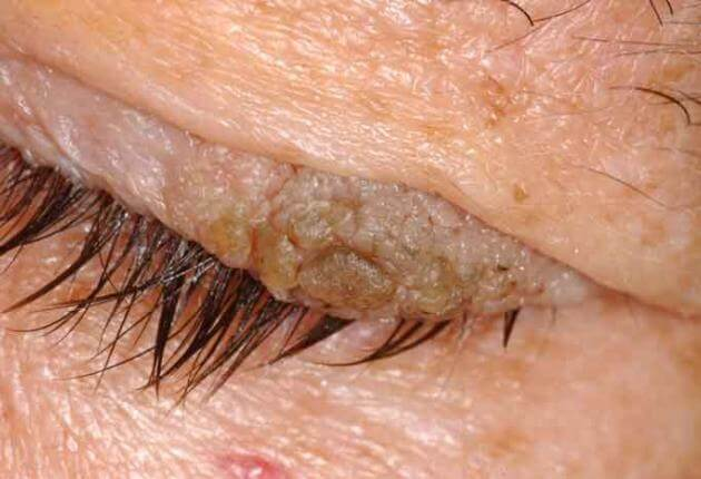 wart on eyelid rim