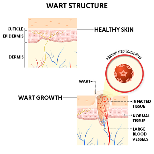 wart removal treatment in bangalore