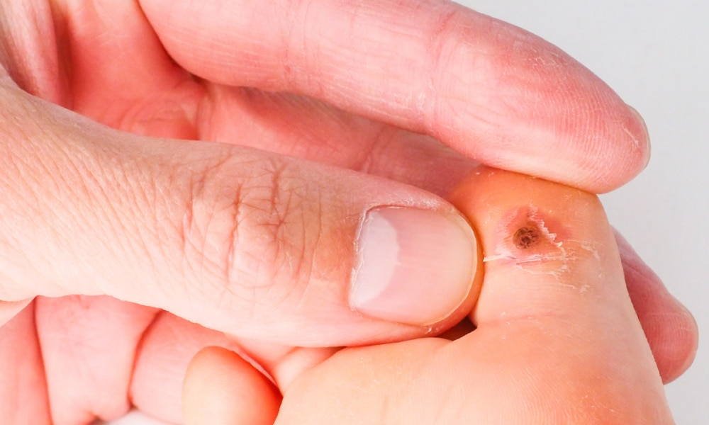 warts on babies hands
