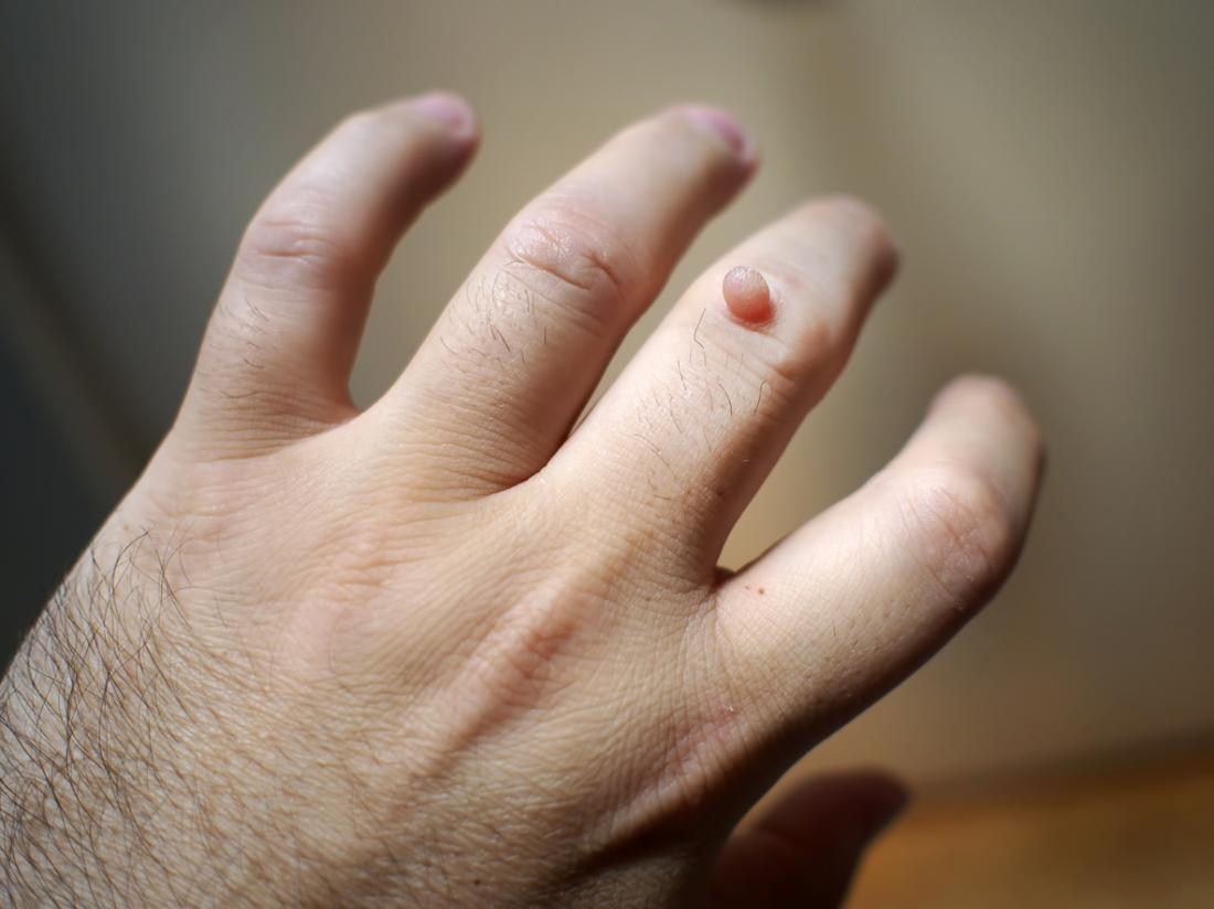 warts on hands blisters