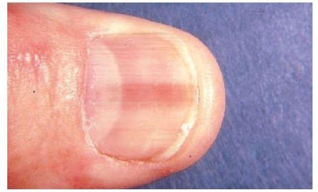 simptome cancer unghie detoxifiant rinichi