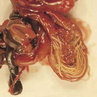 papilloma virus se cura