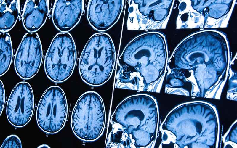 cancer cerebral convulsiones ciuperci a la grecque