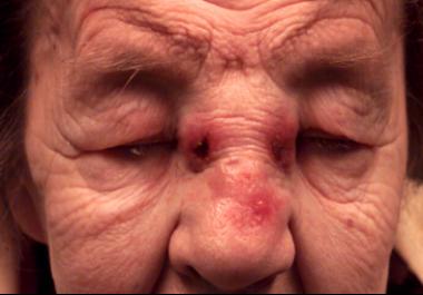 papillomas inside nose