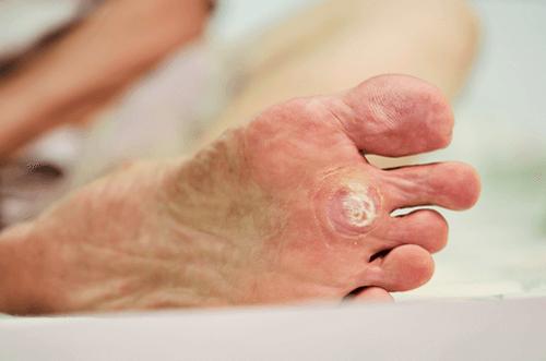 wart foot symptoms
