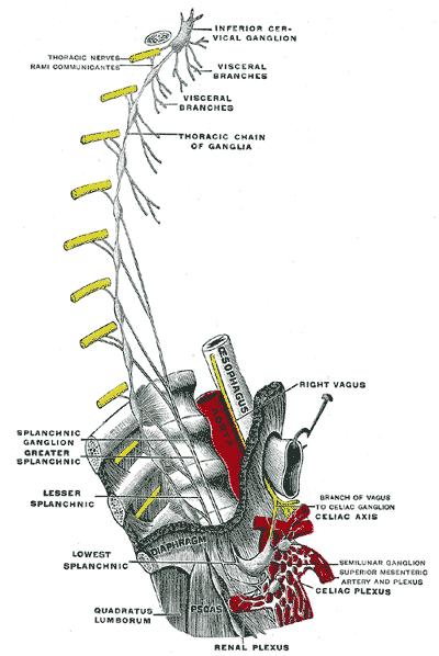 cancer ganglion cervical squamous papilloma la gi